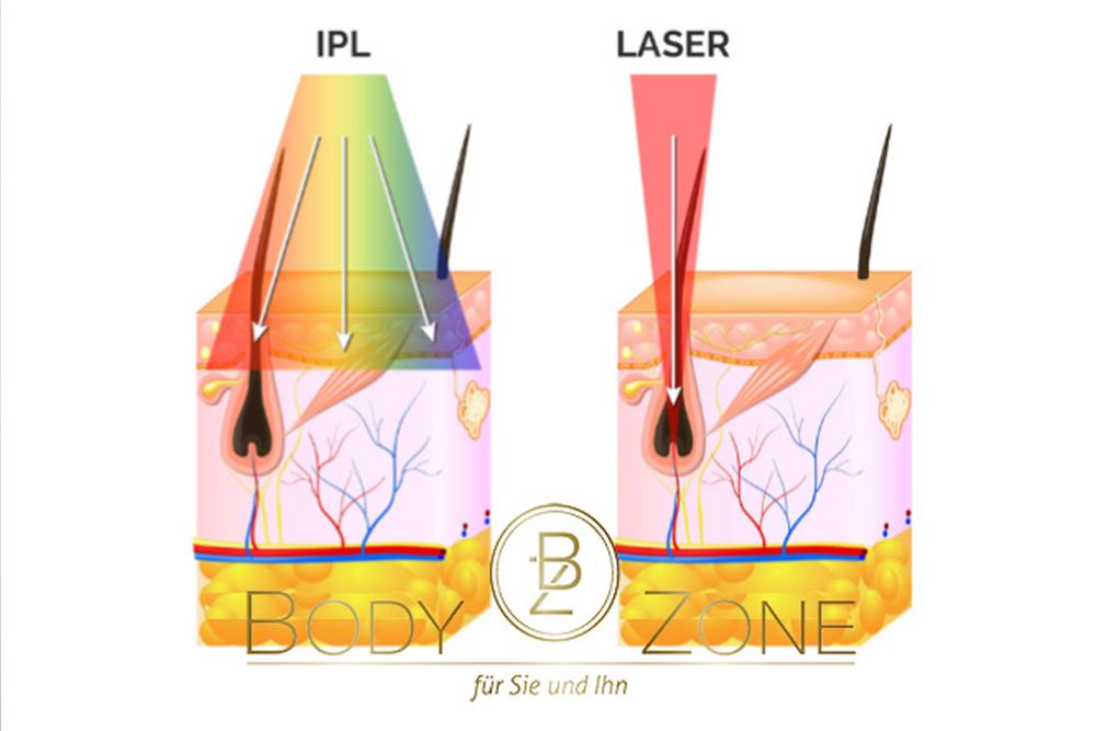 Haarentfernung mit dem Asclepion Dioden-Laser bei Body-Zone in Alkoven im Bezirk Eferding